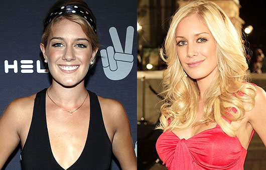 heidi montag before and after 10 surgeries. Heidi before and  after